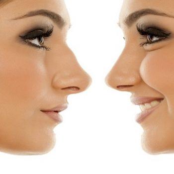 نگرانی جراحی زیبایی بینی