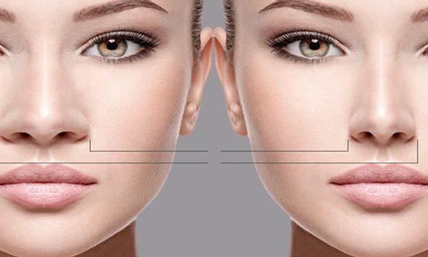 رینوپلاستی بینی های گوشتی
